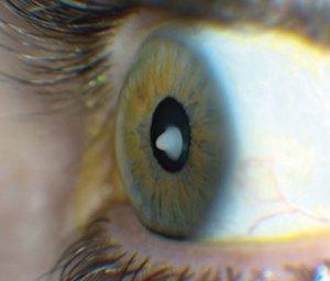 [Image: cataract.jpg]