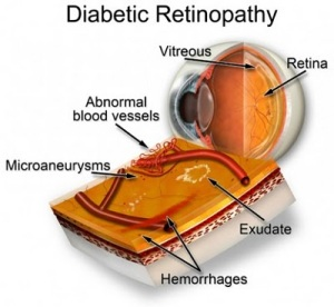 [Image: diabetes-434x400.jpg]